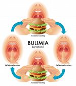 stock photo of bing  - medical illustration of the symptoms of bulimia - JPG