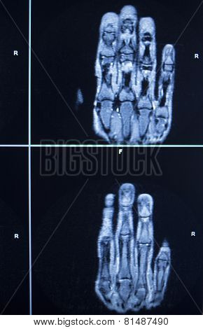 Mri Scan Test Results Hand Finger Injury