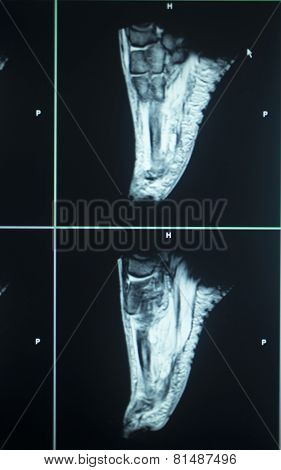 Mri Scan Test Results Foot Toes Injury