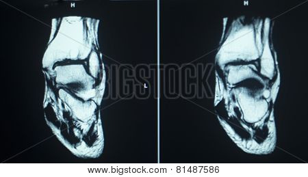 Mri Scan Test Results Ankle Injury
