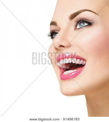 Braces. Beautiful Woman smile close up. Healthy Smile. Closeup Ceramic Braces on Teeth. Beautiful Girl Smile with Braces. Orthodontic Treatment. Dental care. Alignment of teeth. Aesthetic dentistry