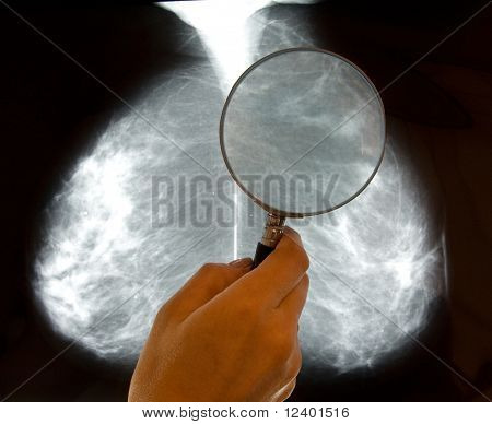 doctor examining mammography x-ray pictures