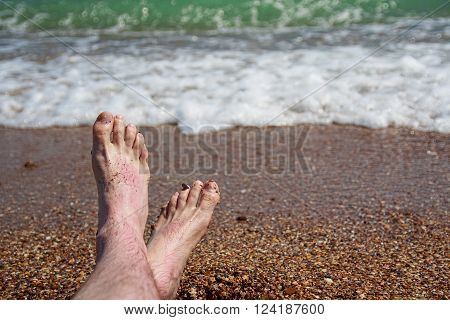 Men's feet reddened in the sun on the shore