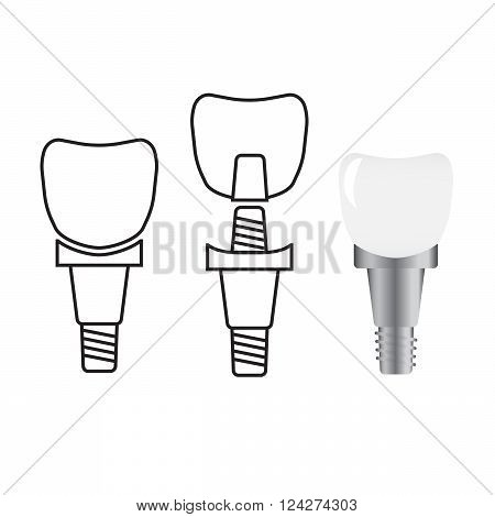 Tooth implant. Implant dental and health tooth