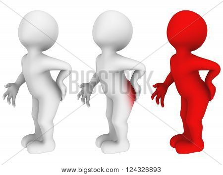 3d abstract man with hemorrhoids. Pain in back. 3d render.