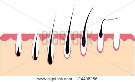 Loss hair growth hair problem health hair. Hair growth phase. Vector illustration