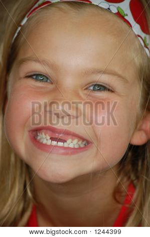 Little Girl With Two Front Teeth Missing