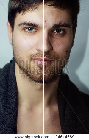 Before and after cosmetic operation. Young man portrait isolated on a white background. Before and after cosmetic or plastic procedure anti-age therapy removal of acne retouching. studio shot