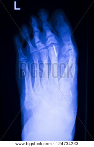 Foot Toes Metal Implant Xray Scan