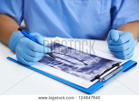 Male surgeon examining teeth decay looking at jaw x-ray of patient. Young dentist in gloves pointing at sore molar with pen.