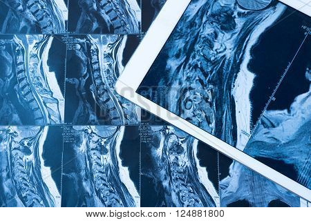 MRI Pictures of spinal column , Doctor pointing to the problem