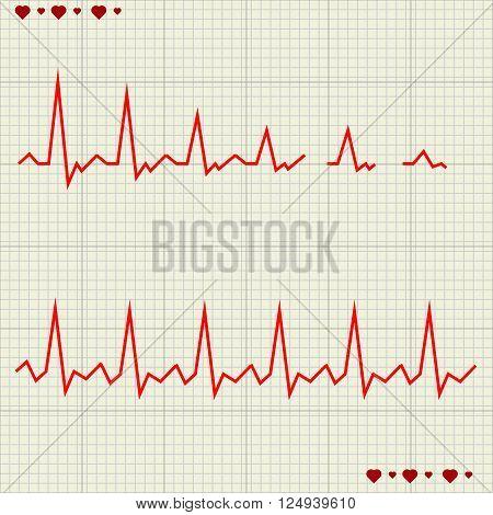 A Vector illustration set Heart beats cardiogram
