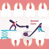 Tiny Dentists Men Treating Giant Unhealthy Tooth With Caries Hole Drilling Plaque. Guy Hold Stomatol poster