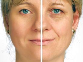 foto of wrinkled face  - An image of correction of wrinkles  - JPG