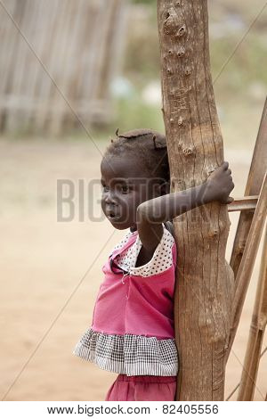 TORIT, SOUTH SUDAN-FEBRUARY 21, 2013: Unidentified child with signs of malnutrition in the town of Torit, South Sudan