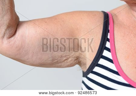 Close Up Middle Aged Woman Muscles And Underarm