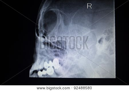X-ray Orthopedics Traumatology Scan Nose Injury Breathing