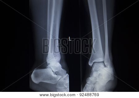X-ray Orthopedics Scan Of Foot Injury Anterior Posterior Ap