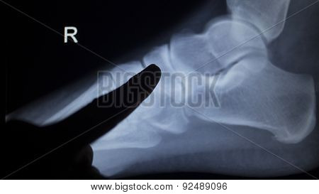 X-ray Orthopedics Scan Of Foot Injury
