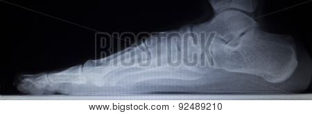 X-ray Orthopedics Scan Of Foot Injury Load Weight Bearing