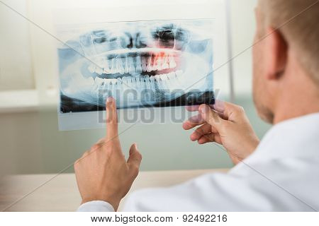 Male Doctor With X-ray