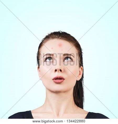 Confused teenage girl looking up on her forehead. Problem skin concept.