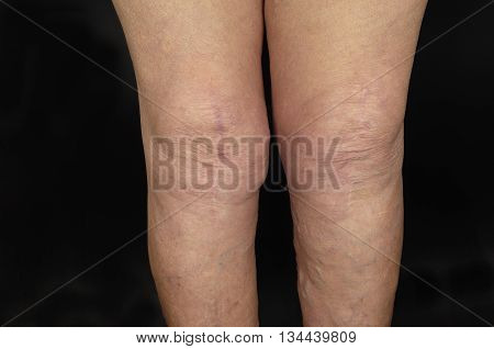 scarring after surgery knee prosthesis on black background