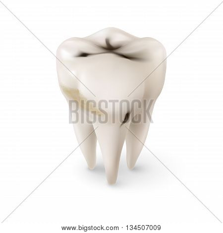 Isometric Concept of Human Tooth with Caries on White