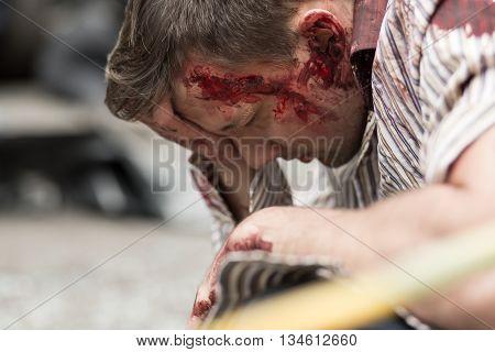 Car Crash Victim