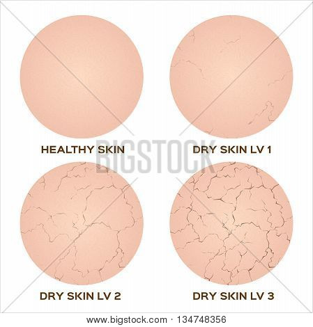 step of healthy skin to dry skin texture , vector