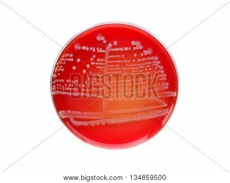 Colonies of bacteria in culture media plate