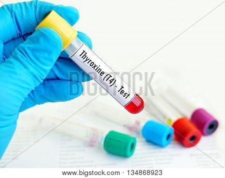 Blood sample for thyroxine (T4) hormone test