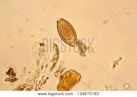 Egg of Trichuris trichiura in stool, analyze by microscope