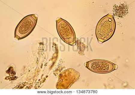 Egg of helminth in stool, analyze by microscope