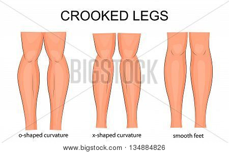 illustration of types of curvature of the legs