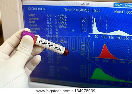 Test tube with blood sample for blood cell count test