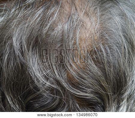 Hair loss, balding white man on into adulthood.