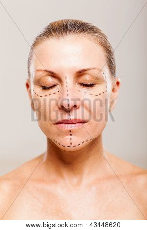 middle aged female patient with correction lines before cosmetic operation