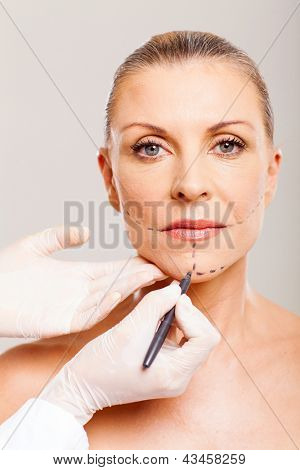 older woman with correcting lines before cosmetic surgery