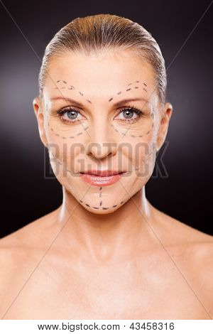 portrait of senior woman before plastic surgery close up