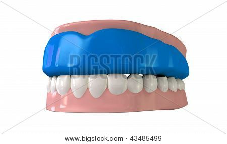 Gum Guard Fitted On Closed False Teeth