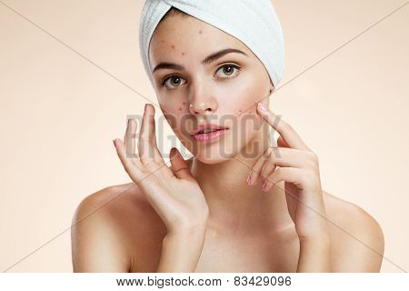 Scowling girl pointing at her acne with a towel on her head. Woman skin care concept