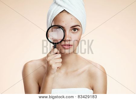 Woman with a pimply face holding magnifying glass. Woman skin care concept