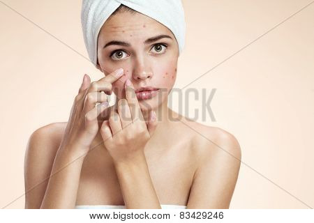 Acne spot pimple spot skincare beauty care girl pressing on skin problem face