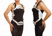 pic of spine  - Lumbar jewet braces hyperextension brace for back truma or fracture thoracic and lumbar spine - JPG