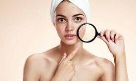 stock photo of ugly  - Teen girl with problem skin look at pimple with magnifying glass - JPG