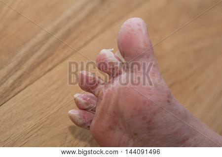 Foot molts after viral skin disease - closeup