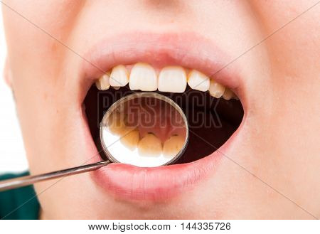 dental treatment at the dentist patient, tool