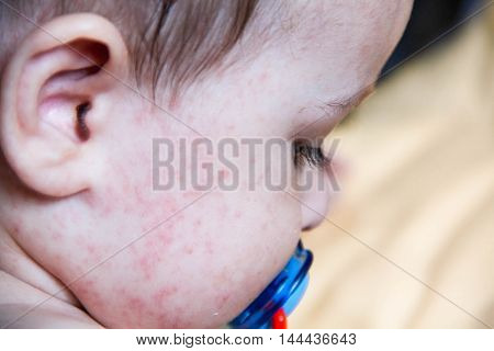 baby with dermatitis problem rash. Allergy suffering from food allergies. Close-up atopic symptom on skin cheeks. concept