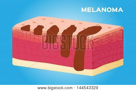 Stadiums of Melanoma vector , anatomy on blue background